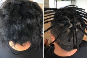 Melbourne Half head dreadlocks creation